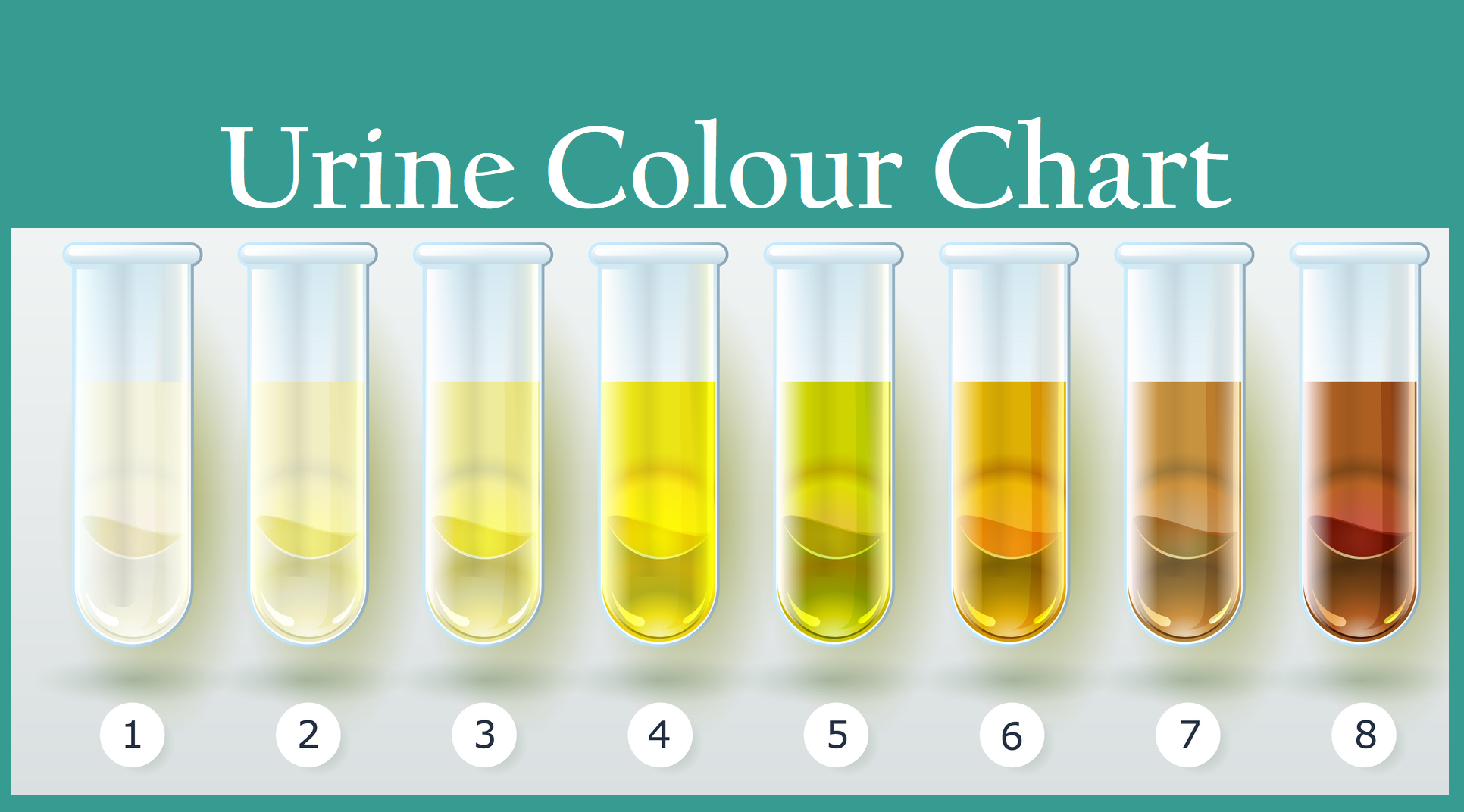 Your Urine Colour And What It Says About Your Health