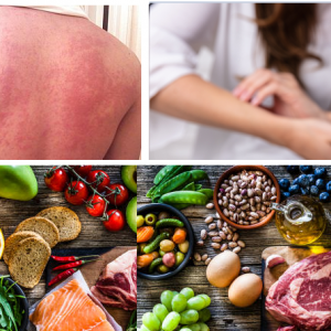 Food Allergy: Causes, Symptoms, Diagnosis, Treatment, Prevention, Risk factor, Complications