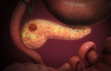 Pancreatic Cancer: Causes, Stages, Symptoms, Diagnosis, Treatment, Risk factor