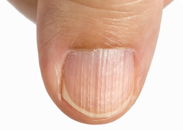 Hard Fingernail Textures and Colors Say About Your health --
