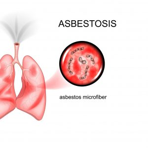 Asbestosis: Symptoms, Causes, Diagnosis, Treatment, Outlook, Prevention