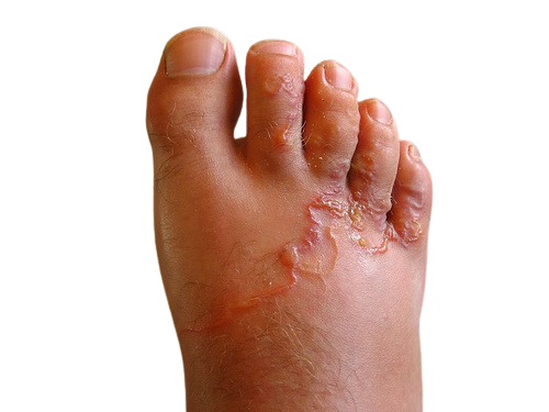 Hookworm Infections: Causes, Symptoms, Prevention, Treatments And Complications