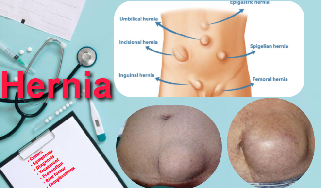 Hernia: Types, Causes, Symptoms, Treatments, Risk Factors, Complications, Prevention